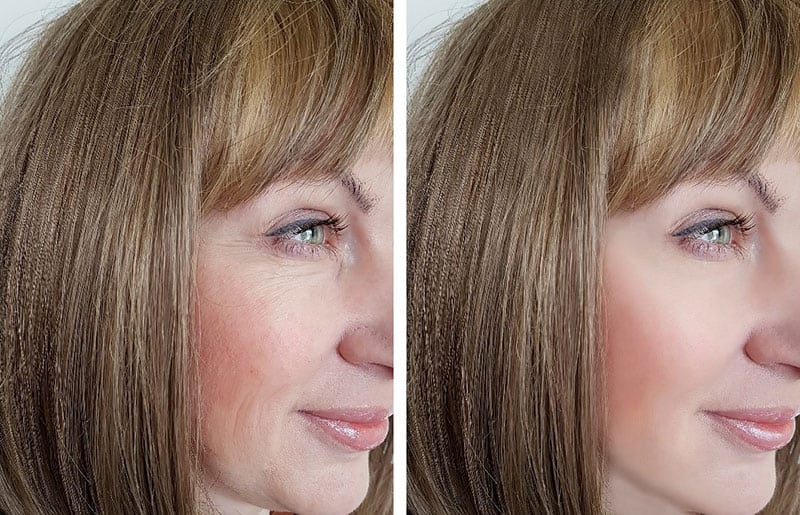 Botox treatment for facial wrinkles